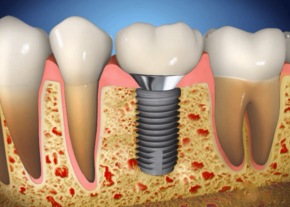 عکس ایمپلنت دندان