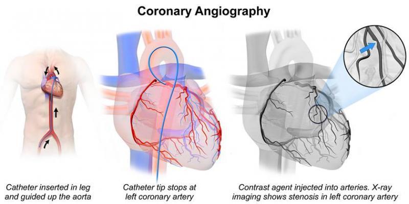 تفاوت آنژیوگرافی با آنژیوپلاستی