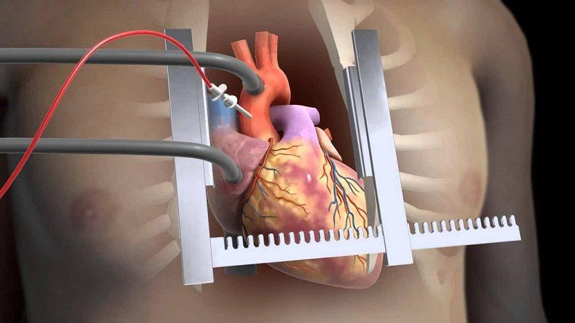 جراحی قلب باز