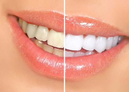 زیباای دندان