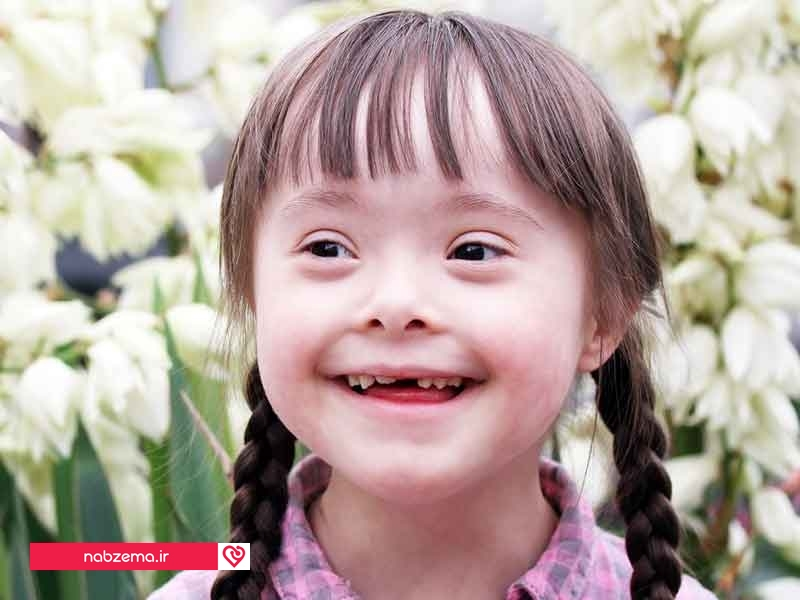 تصویر درمان سندروم داون