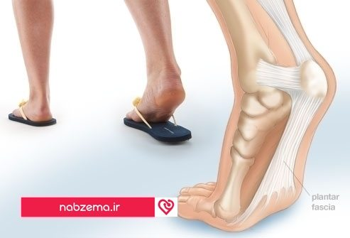 webmd_rf_photo_of_plantar_fasciitis