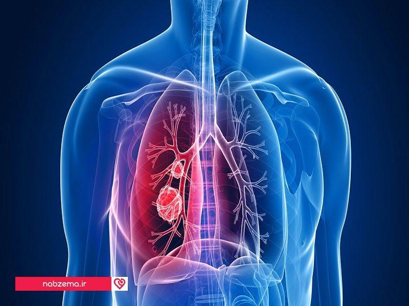 تشخیص سرطان ریه
