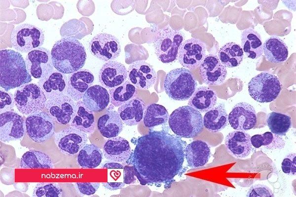 پلاکت های خون