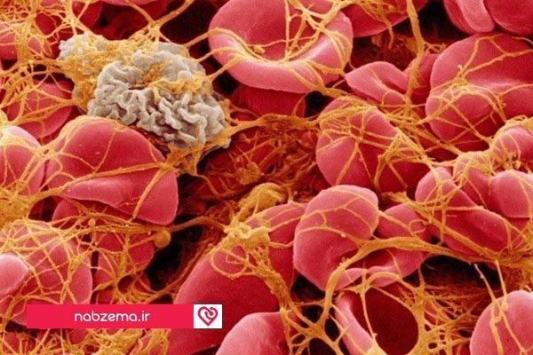 درمان ترومبوسیتوپنی