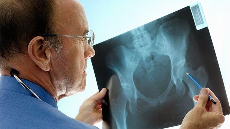 تشخیص و علائم پوکی استخوان