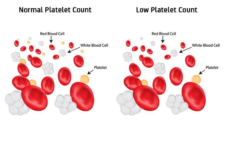 کاهش پلاکت خون