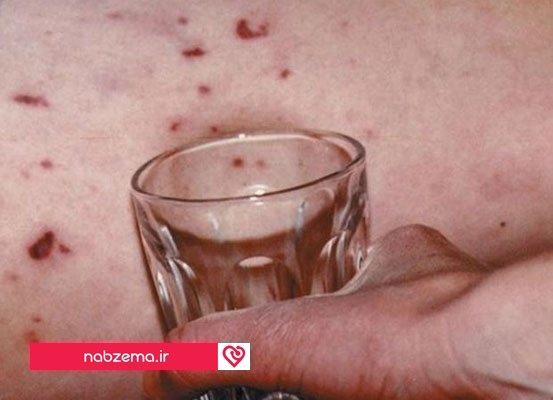 نشانه بیماری مننژیت