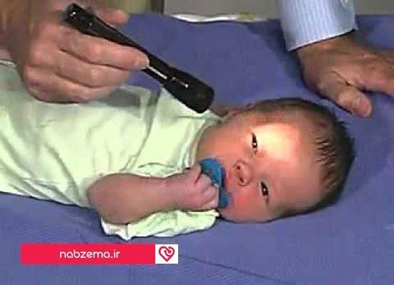 معاینه چشم در بدو تولد