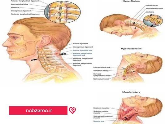 ورزش گردن