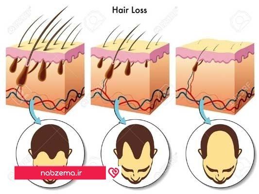 ریزش مو و کاشت