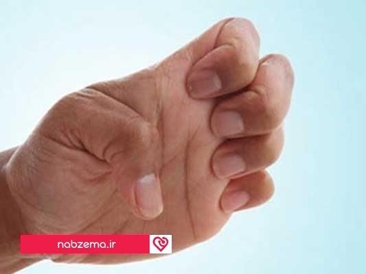 نرمش دست