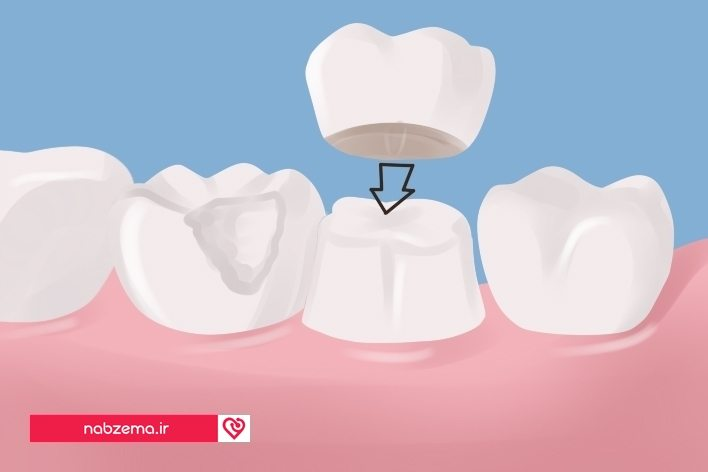 روکش برای دندان