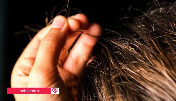 کندن مو