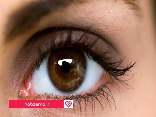 ورم عصب چشم