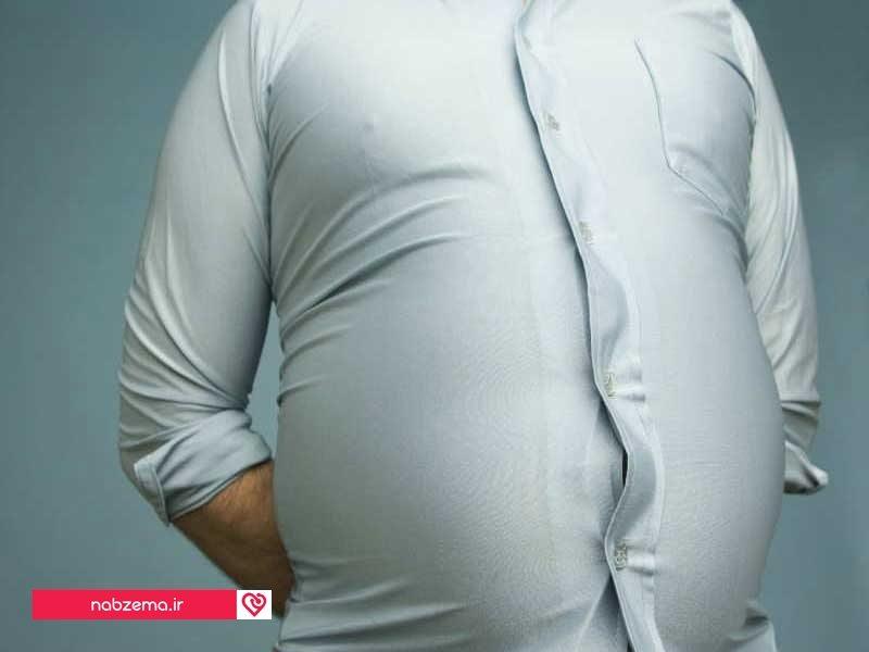 چاقی شکمی