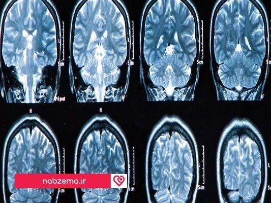 درمان سکته مغزی با زالو