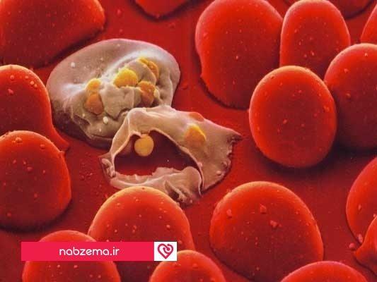 عفونت در خون