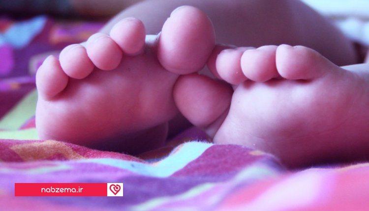 کج گذاشتن پا در کودکان