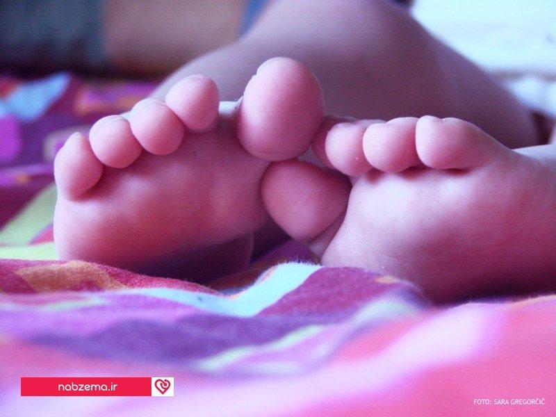 انحراف پا در نوزاد