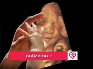 تشخیص لب شکری در سونوگرافی