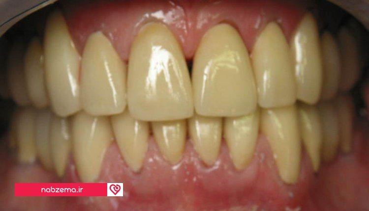 درمان زردی دندان