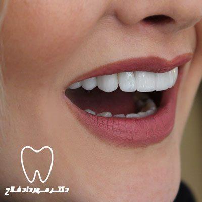 لامینیت دندان دکتر فلاح