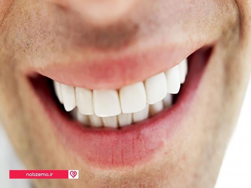 تراشیدن دندان