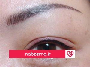تصویر ورم چشم بعد از تاتو ابرو