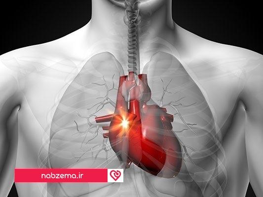 درد قفسه سینه هنگام نفس کشیدن