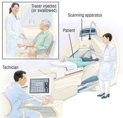 مراحل انجام اسکن هسته ای قلب
