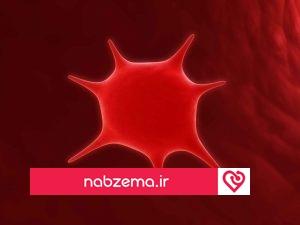 تصویر درمان پایین بودن پلاکت خون در کودکان