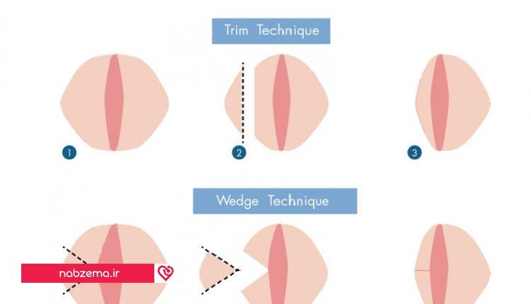 مراحل عمل لابیاپلاستی