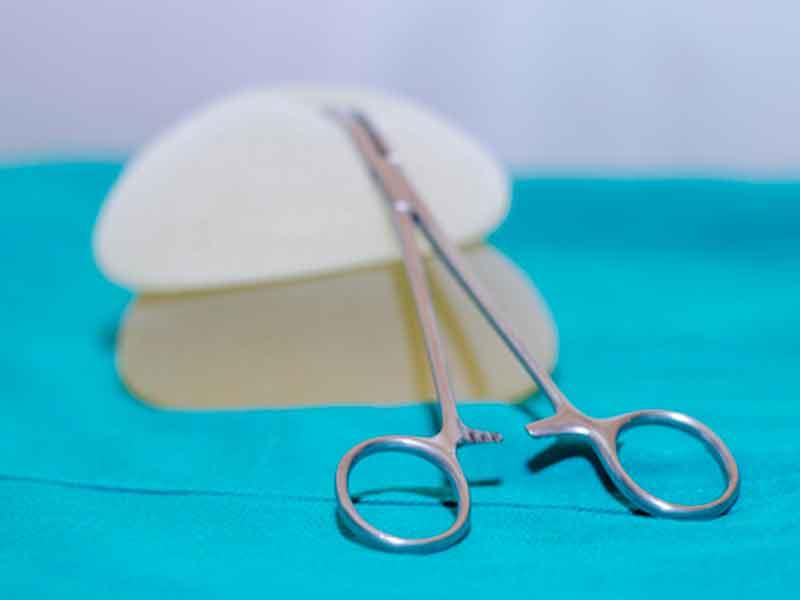 بعد از عمل پروتز سینه