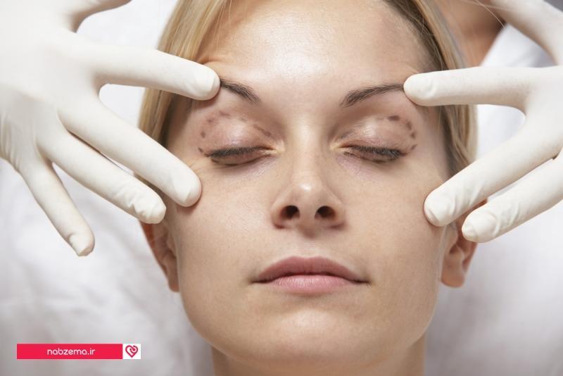 سن مناسب جراحی پلک