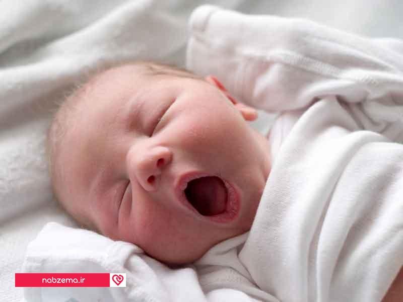 علت خمیازه کشیدن زیاد نوزاد