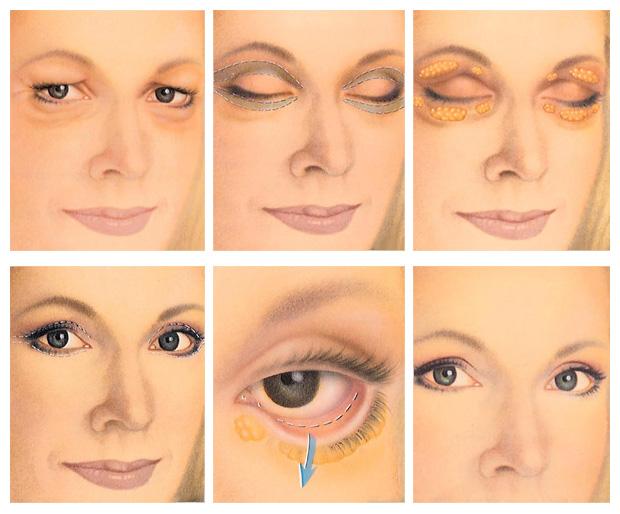 مراحل جراحی پلک