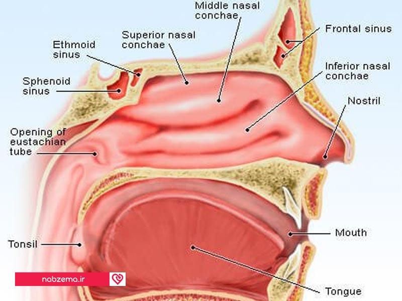 سینوزیت یا التهاب سینوس