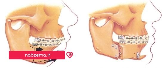 عوارض جراحی فک پایین