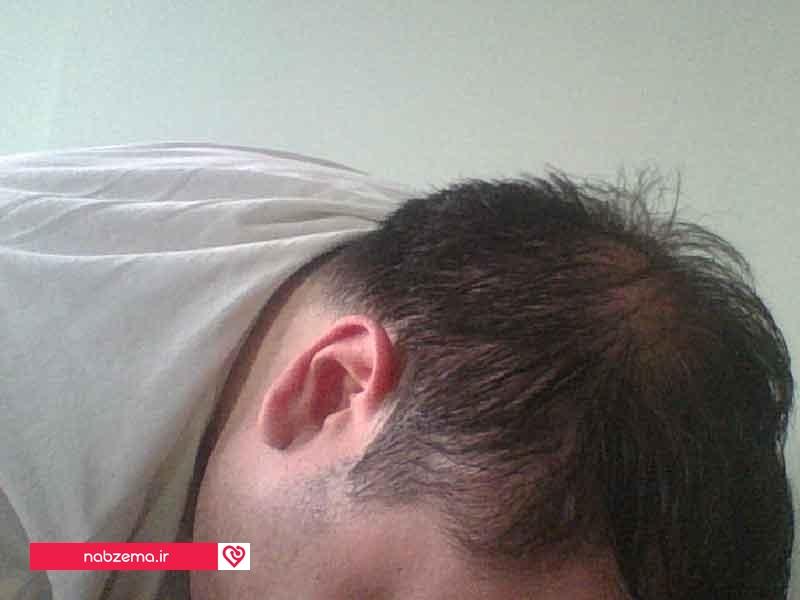 افزایش ریزش سکه ای مو