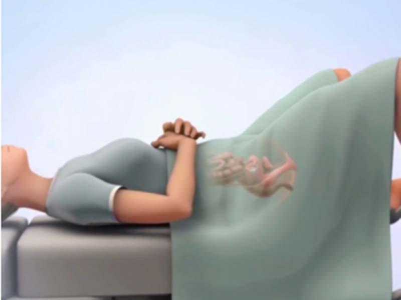 علائم بارداری بعد از iui