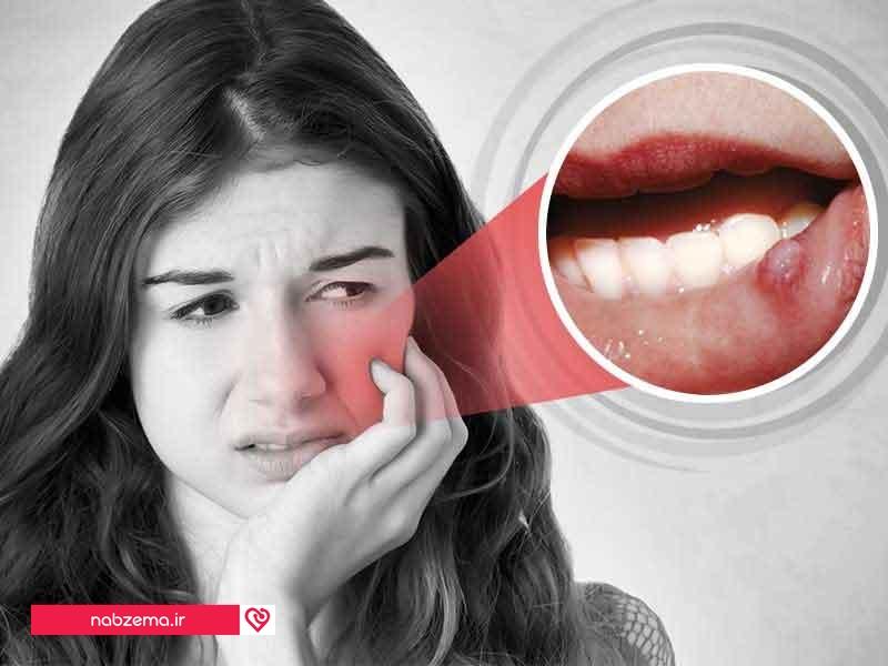 درمان آفت دهان با نارگیل