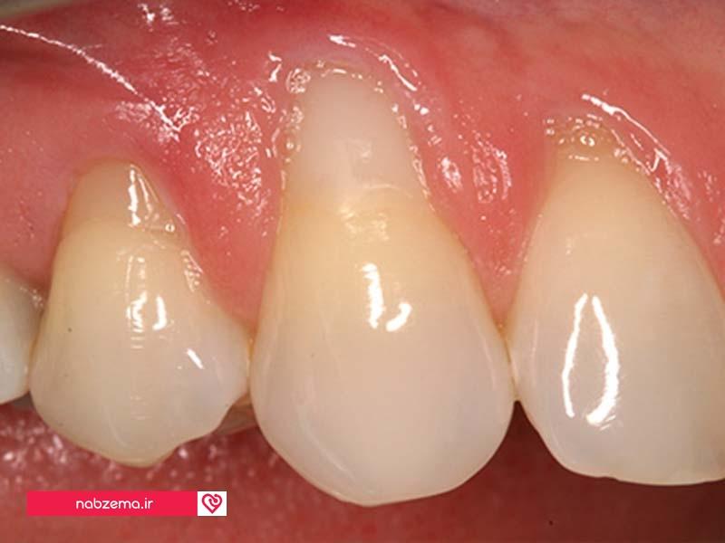 تصویر جدا شدن لثه از دندان