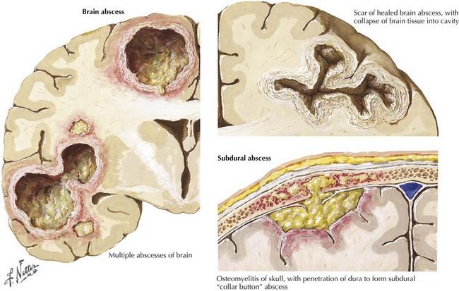 آبسه مغزی در کودکان
