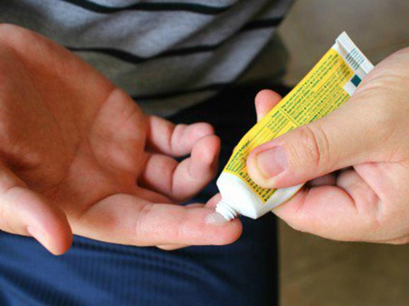 درمان جای سوختگی با دارو