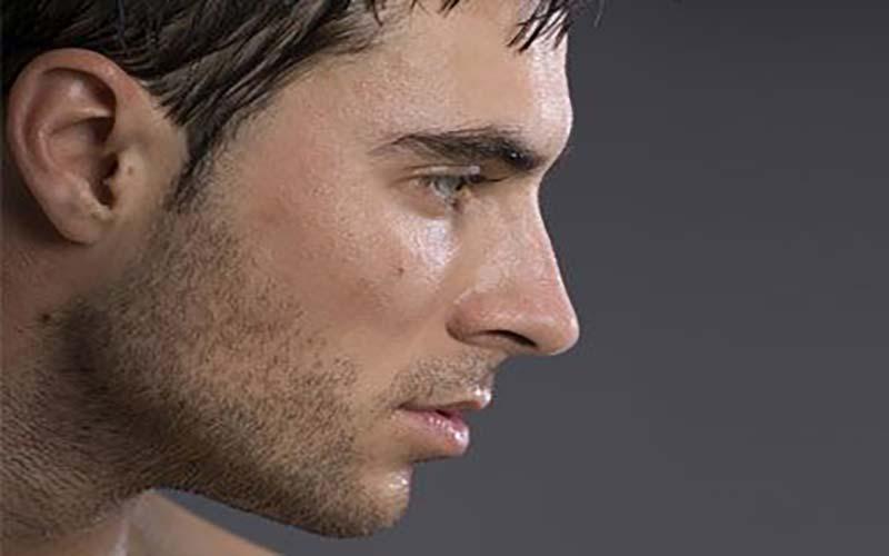 عوارض جراحی بینی در مردان