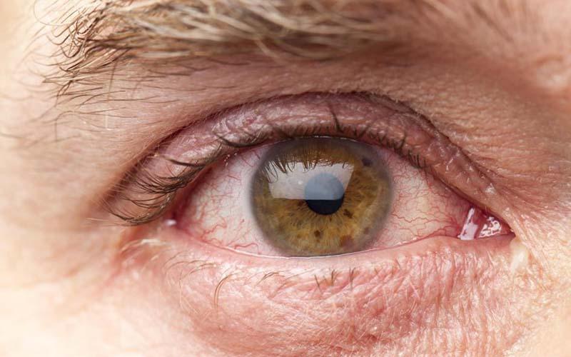 درمان اشک چشم