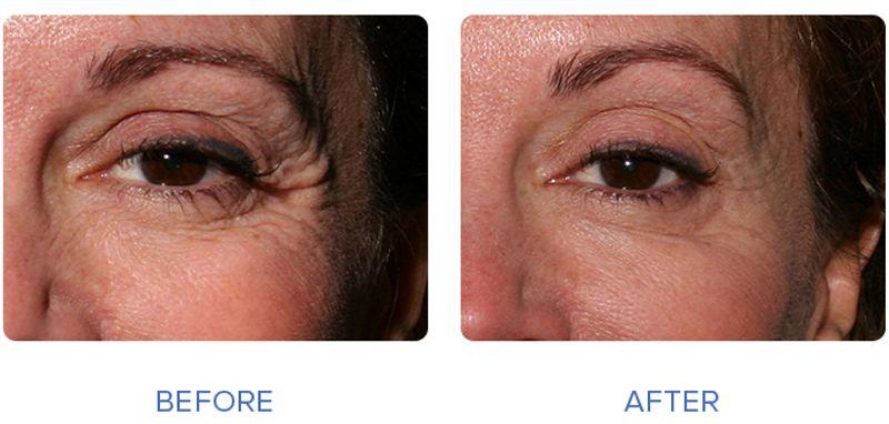 بوتاکس زیر چشم قبل و بعد