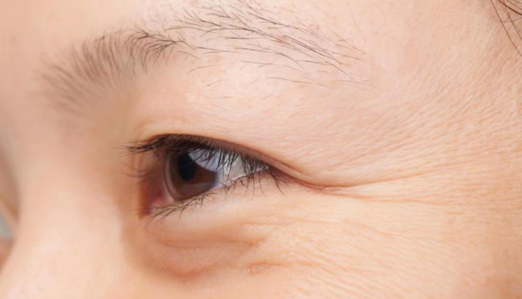 تزریق بوتاکس برای از بین بردن چروک زیر چشم
