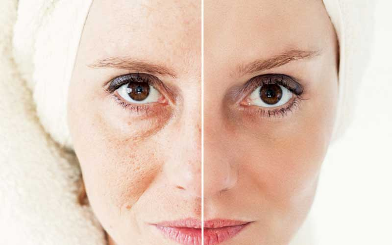 لایه برداری پوست با لیزر